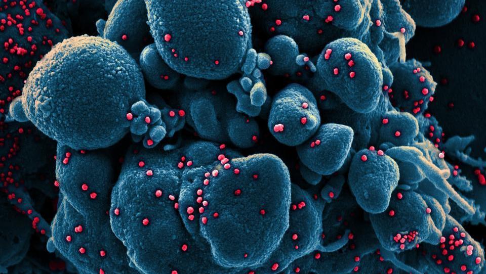 Live-Ticker zum Coronavirus: Alles, was Sie am 7. Mai wissen müssen