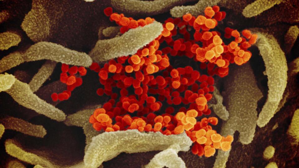 Corona-Impfstoff könnte bereits im September zur Verfügung stehen: Beginnen dann die Verteilungskämpfe?