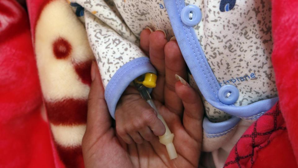 Im Jemen droht ein massenhafter Hungertod bei Kindern, doch die Welt schaut weg